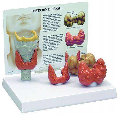 Thyroid Model